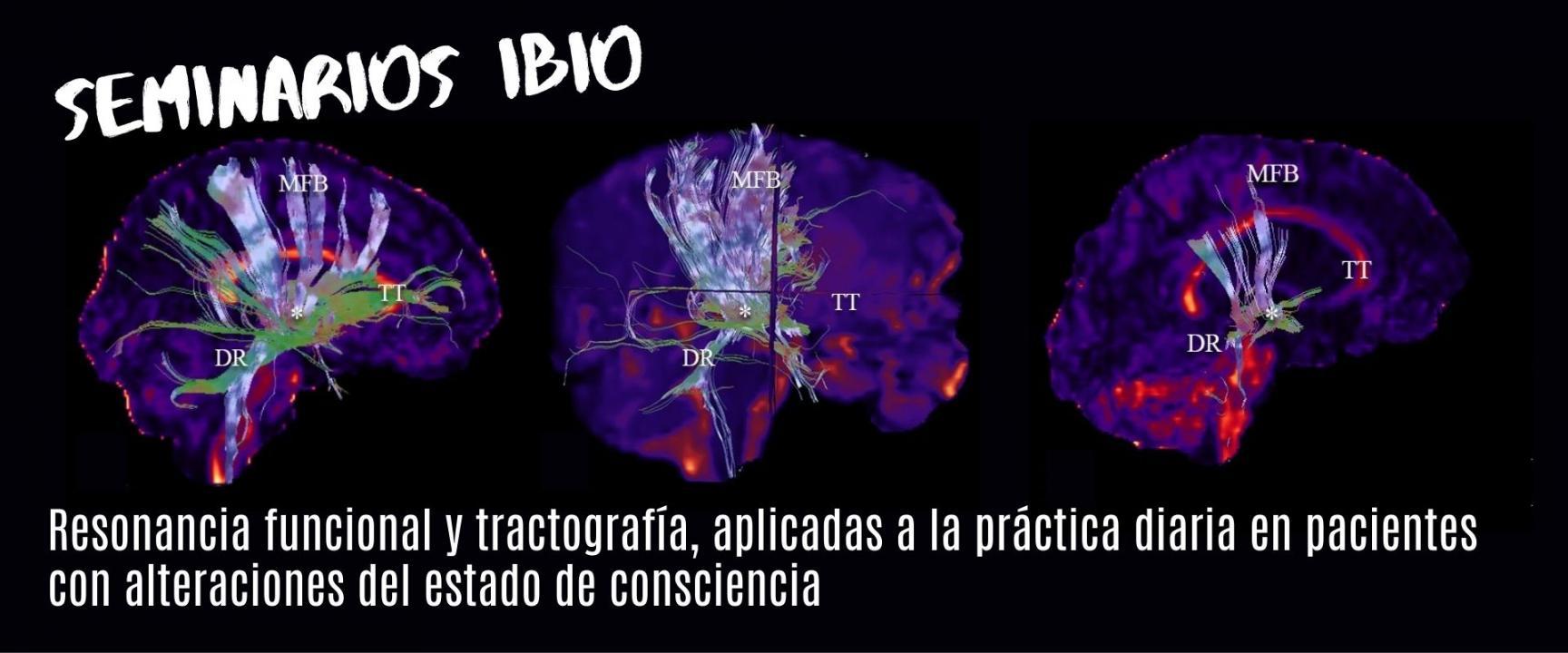 resonancia-funcional-y-tractografia-en-pacientes-con-alteraciones-de-consciencia